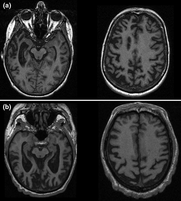 Behavioral Variant of Frontotemporal Dementia